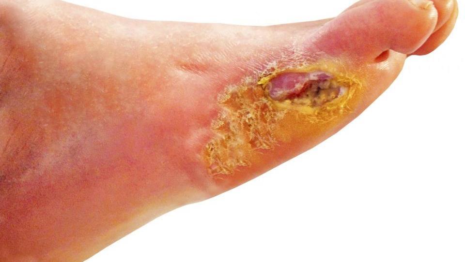 Charcotova artropatija je redek, a hud zaplet diabetičnega stopala