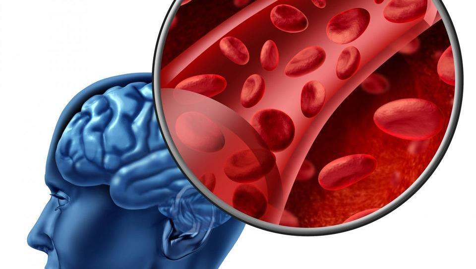 Verjetnost razvoja možganske kapi po prehodnem možgansko-žilnem dogodku